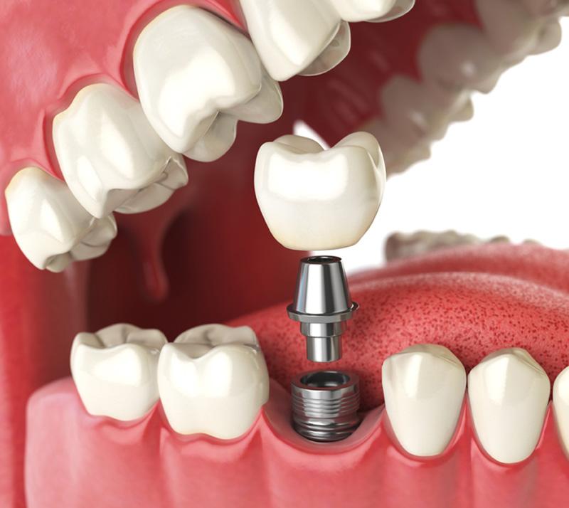 dental implants in north london