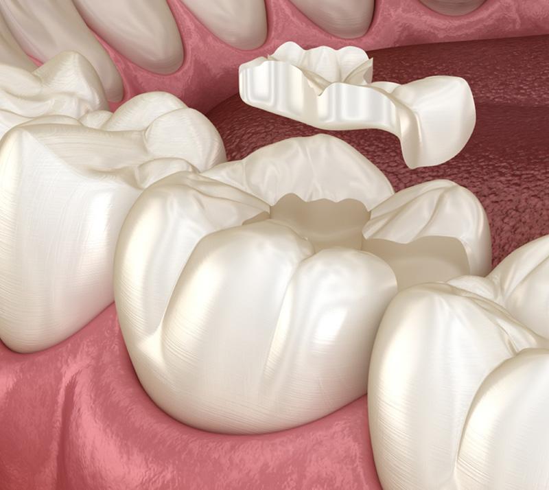 dental inlays onlays near you