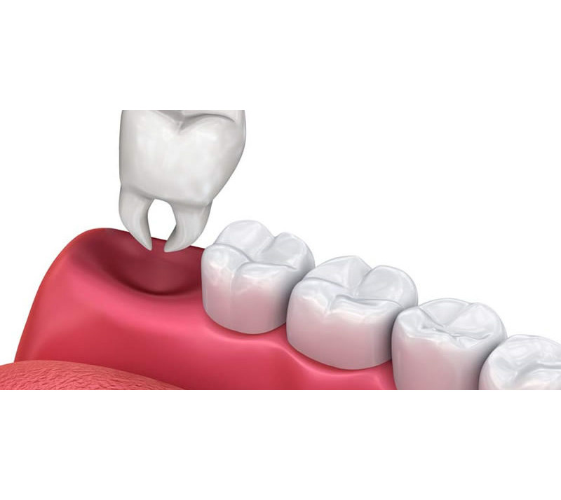 tooth extractions in north london