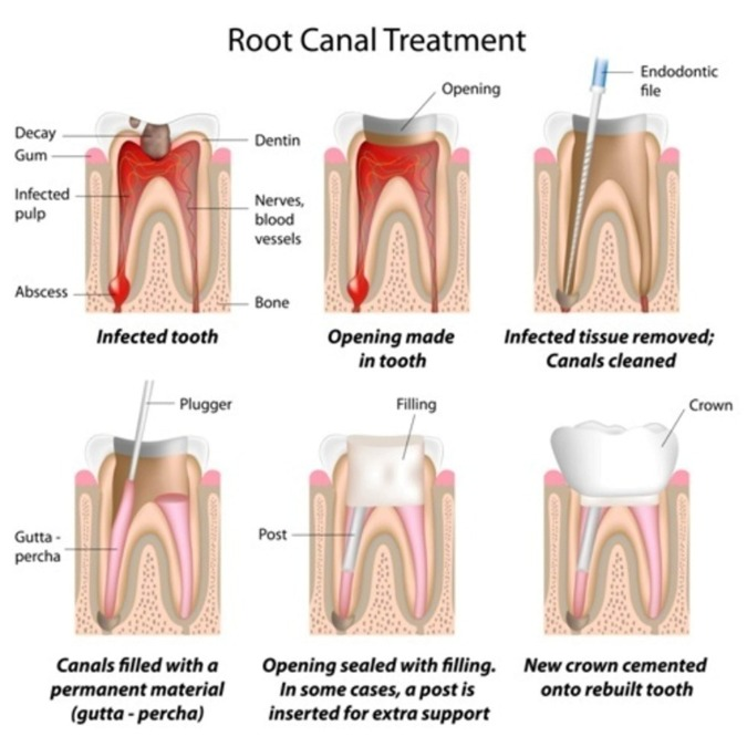 How to Look After Your Teeth After Root Canal Therapy