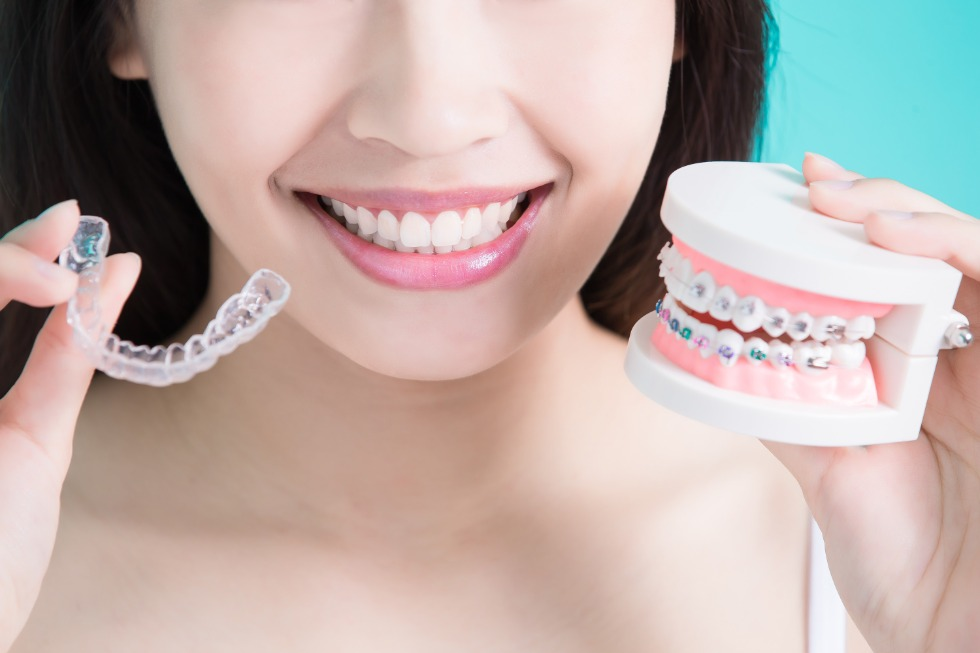 Invisalign: An Alternative to Traditional Braces